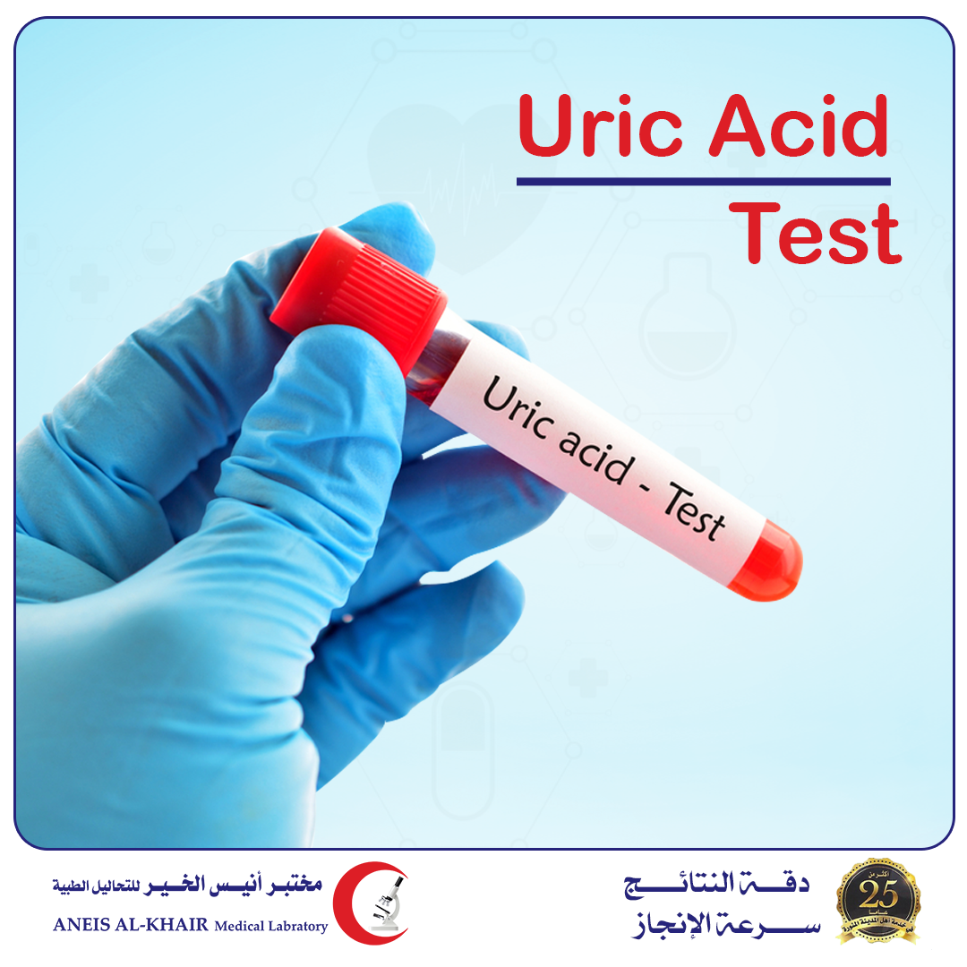 The importance of uric acid analysis